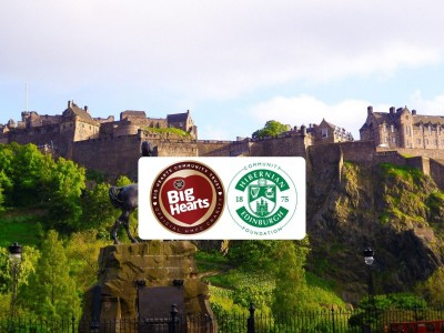 EDINBURGH CHARITY DERBY SET FOR 10TH OCTOBER – TICKETS NOW ON SALE!